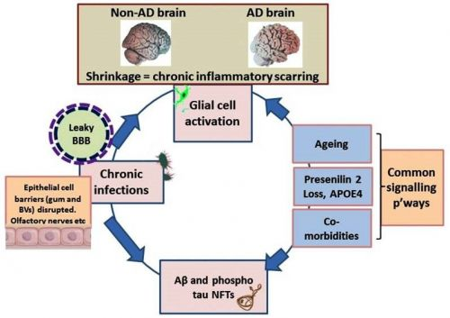 Periodontitis, Microbiomes and their Role in Alzheimer's Disease